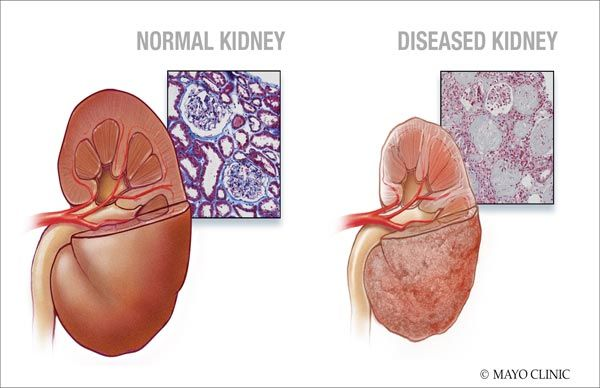 How To Prevent From Kidney Failure In Easy 10 Steps